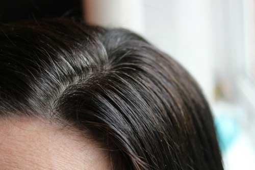 Волосы стали седыми морщины покрыли лицо